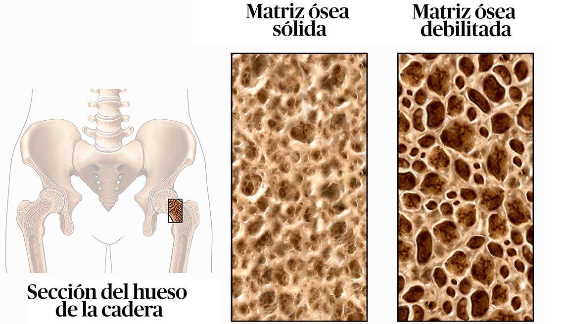 Gráfico que muestra la estructura ósea de una cadera