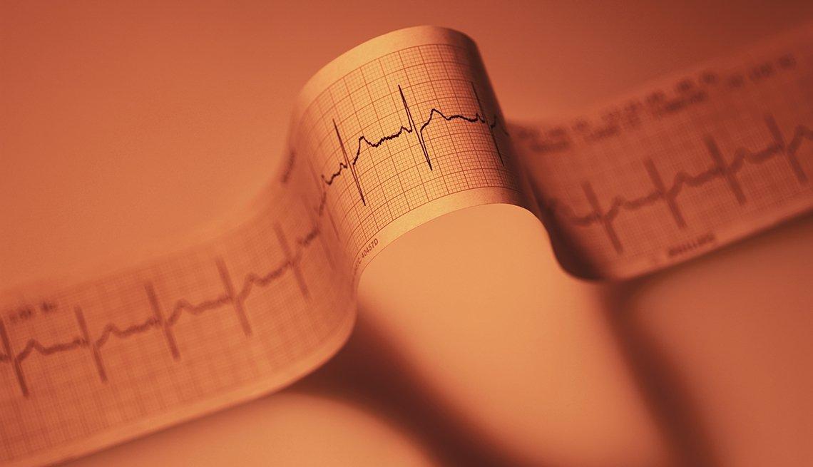 Resultado de un ecocardiograma