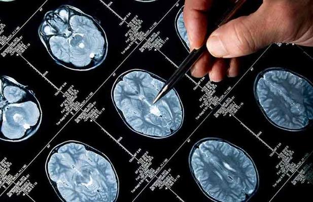 Resultados de un examen del cerebro