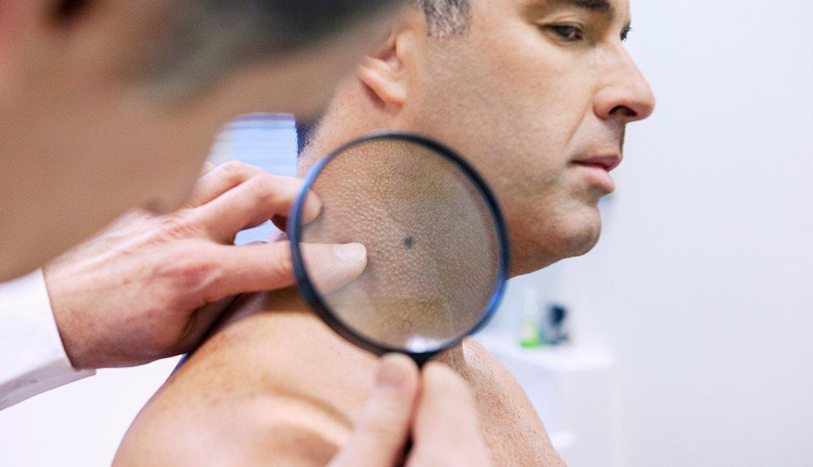 Snyderman: Skin Cancer