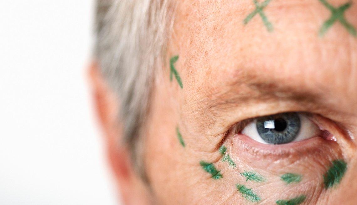 Saving Face - Plastic Surgery