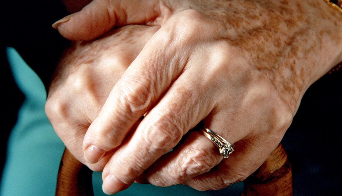 Manos de mujer con manchas