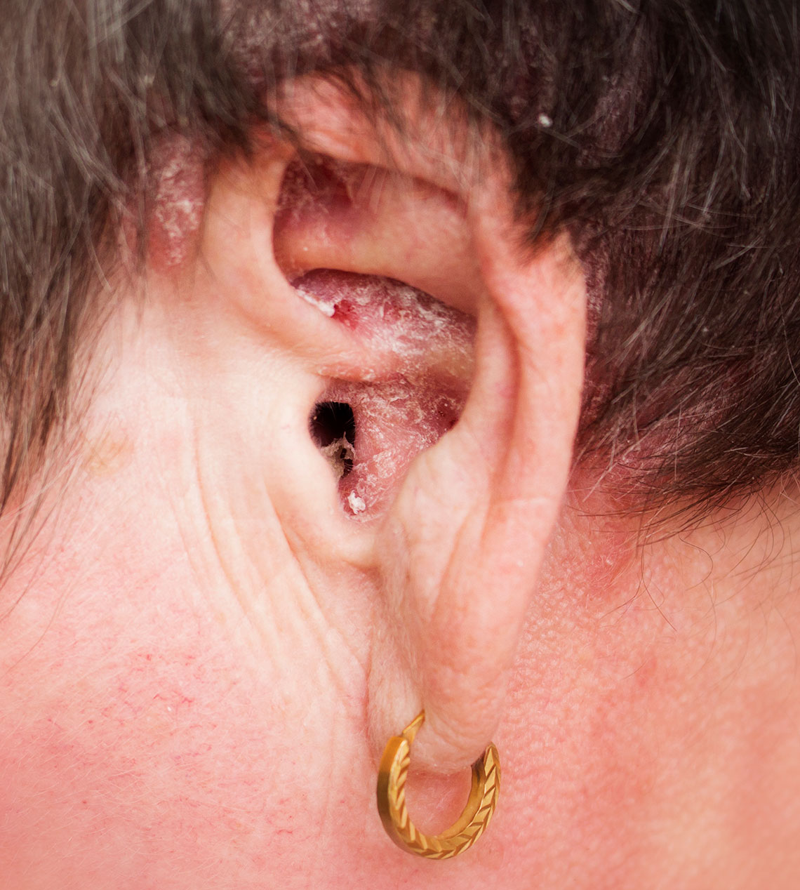 Ear Problems: Psoriasis, Tinnitus, Earache, Ear Wax