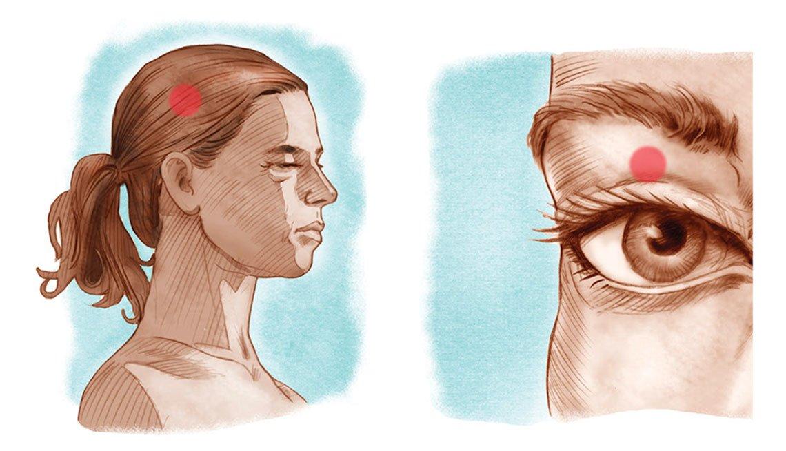 Imflamación del cerebro