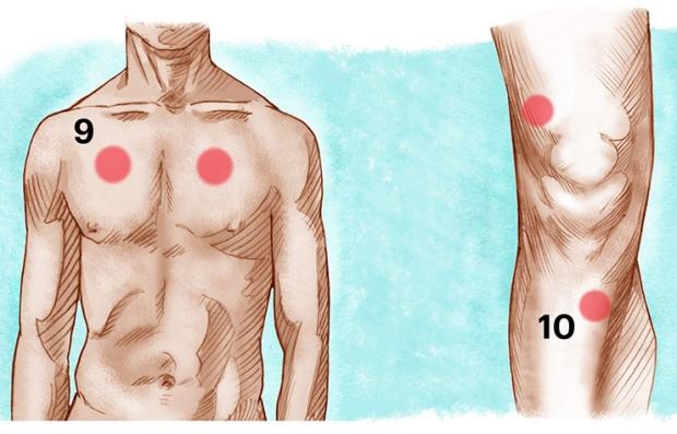 Asma y soriasis