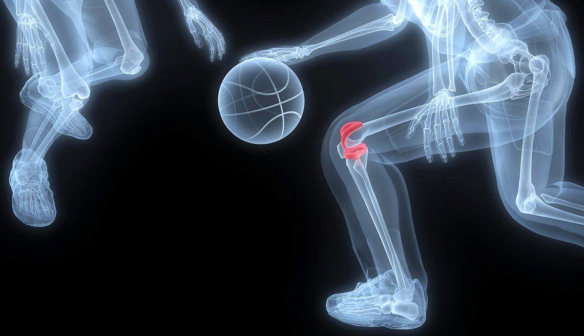 Radiografía de un baloncelista