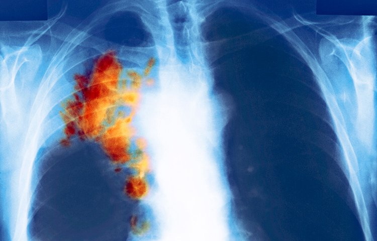A chest x-ray with tumor in lungs