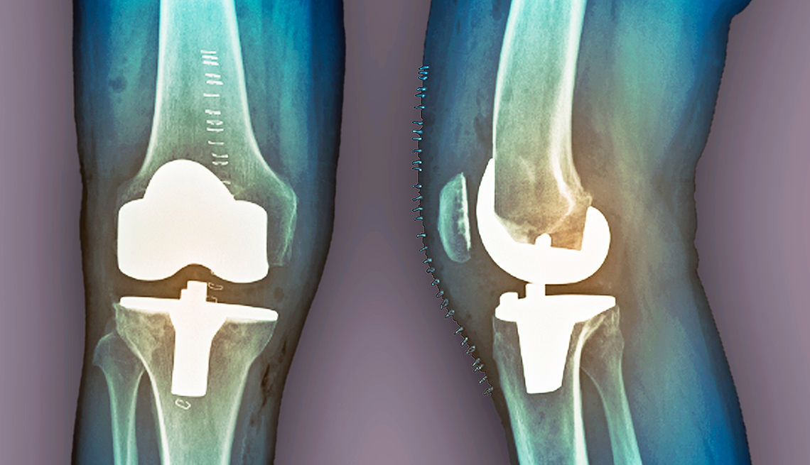 Brain Decline In Older Knee Replacement Patients