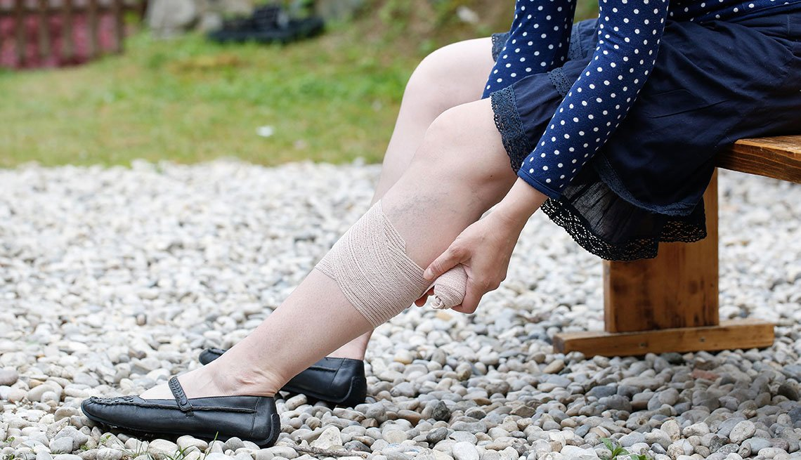Woman with painful varicose and spider veins on her legs