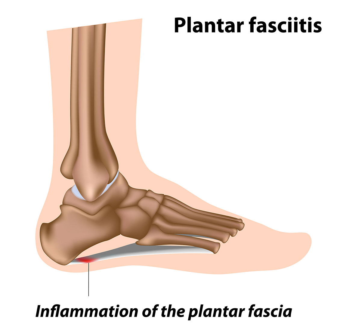an illustration showing an inflammation of plantar fascia in a foot, the condition is known as plantar fasciitis