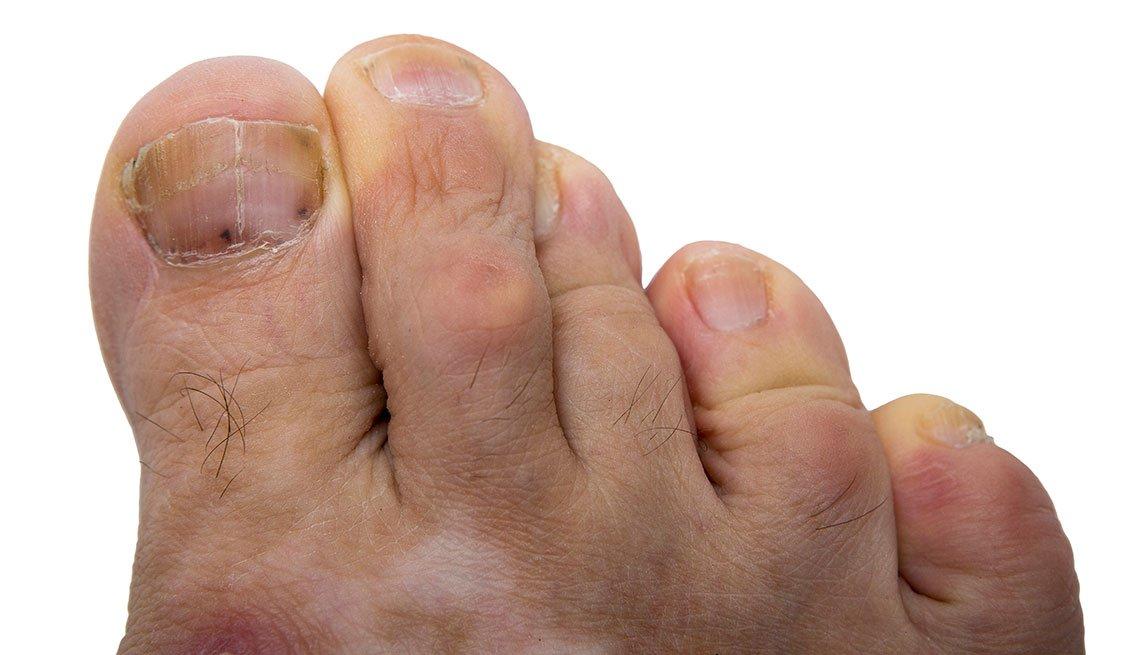 Uñas del pie con cáncer