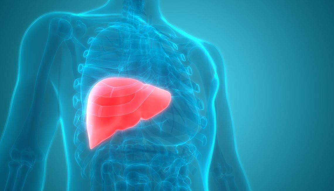 Illustration of liver cancer
