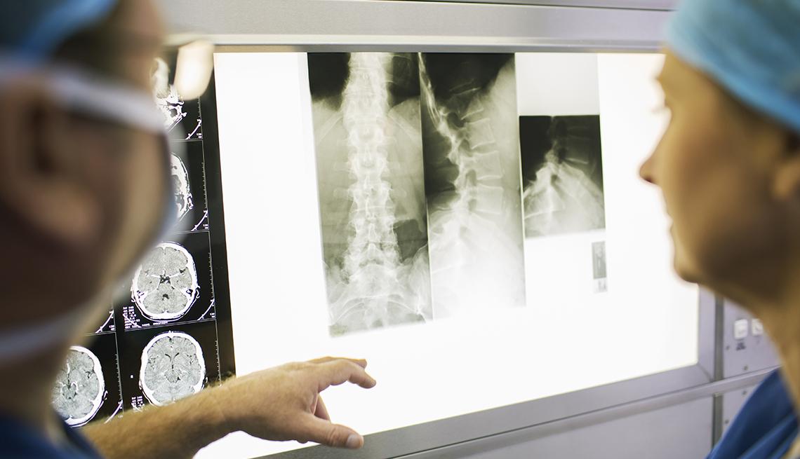 Médicos examinando una radiografía