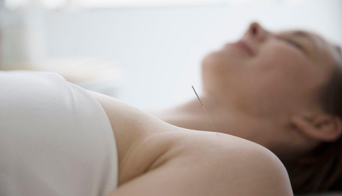 Mujer siendo tratada con acupuntura