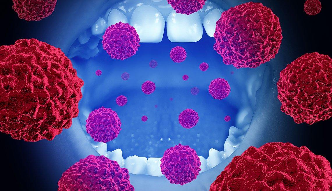 Gráfico sobre el cáncer oral