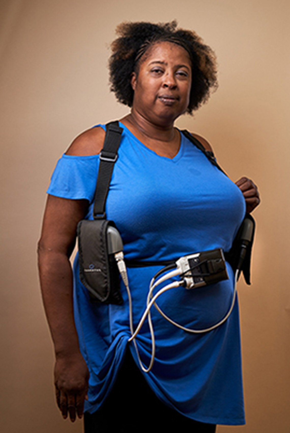 Brenda Smith with her heart pump