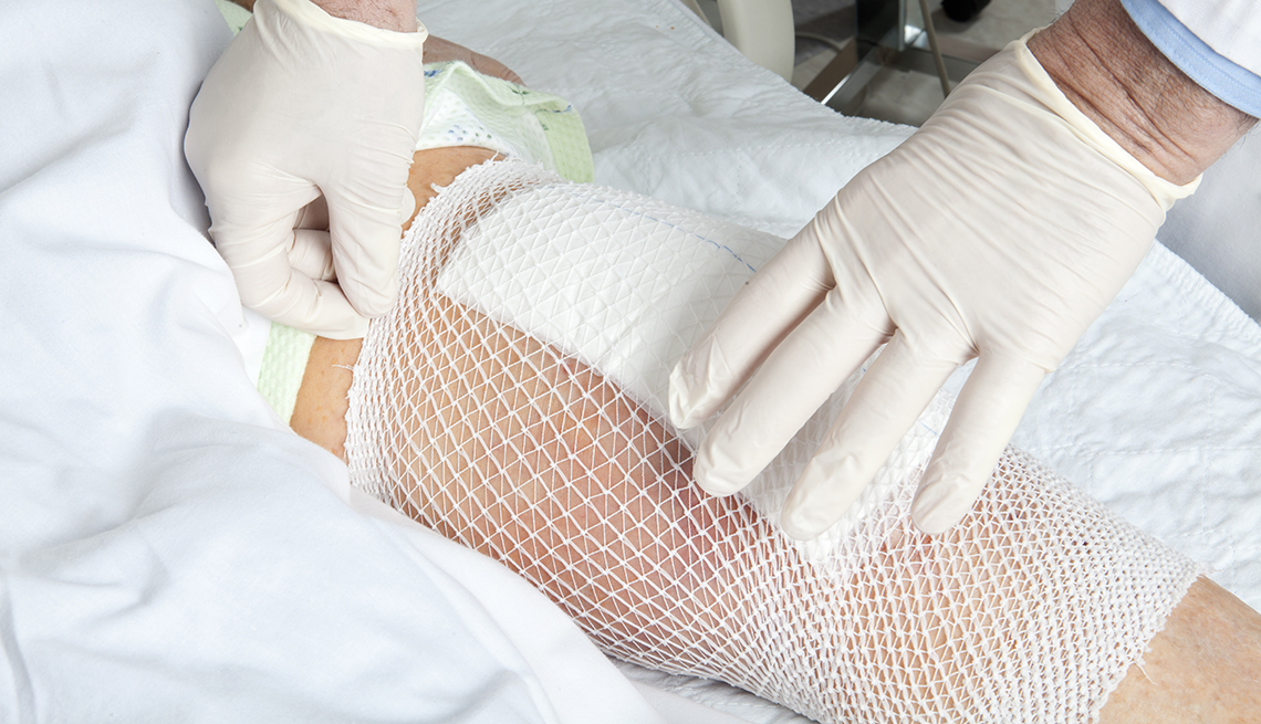 A doctor checking the bandage on a knee replacement patient