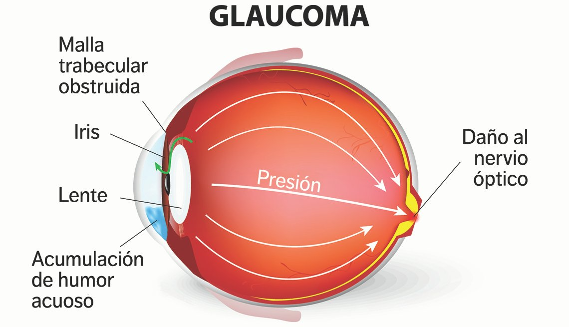 Ilustración de un ojo que padece de glaucoma