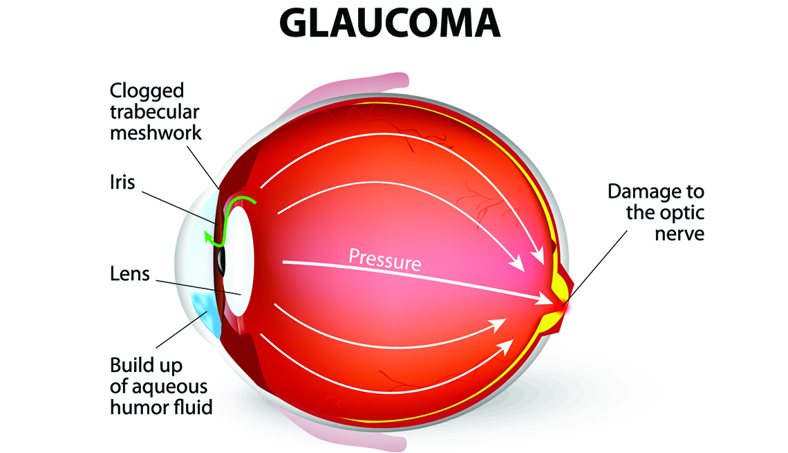 Image result for glaucoma images photos