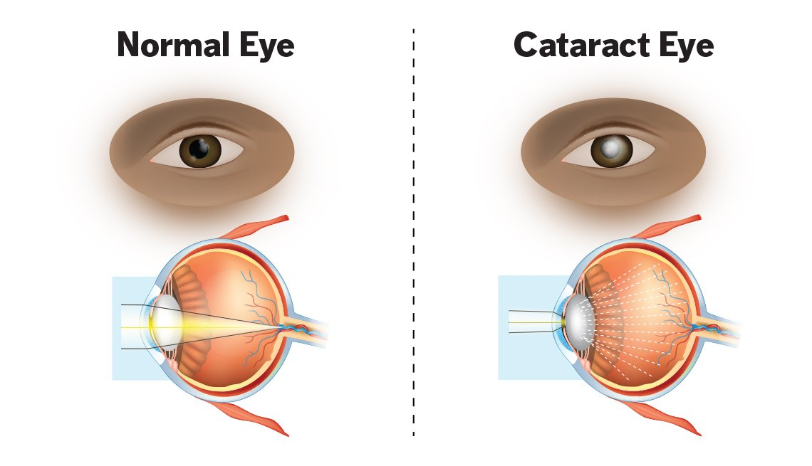 Normal eye vs cataract eye