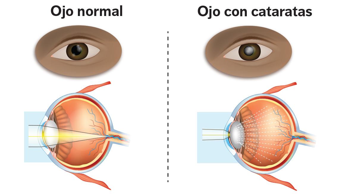 Gráfico de ojo normal versus uno con cataratas