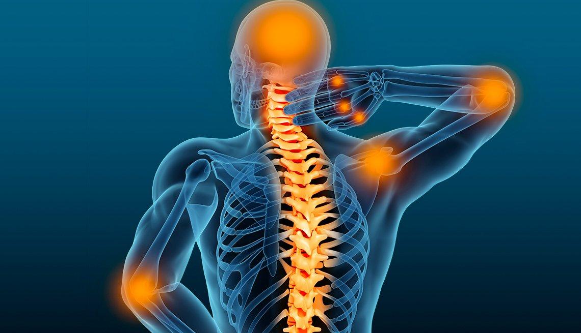 Rayos X del torso de una persona
