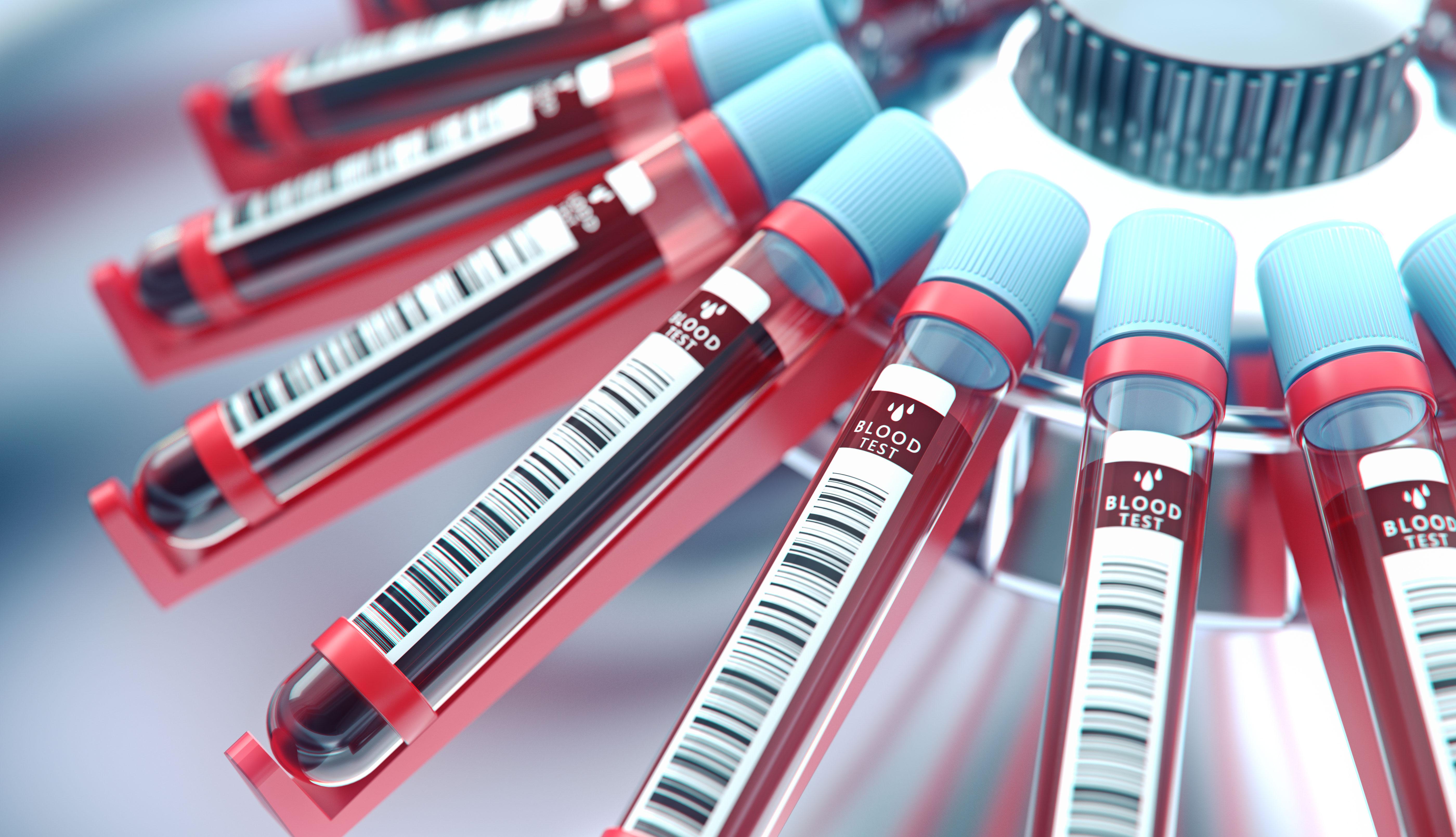 Tubos de ensayo con sangre