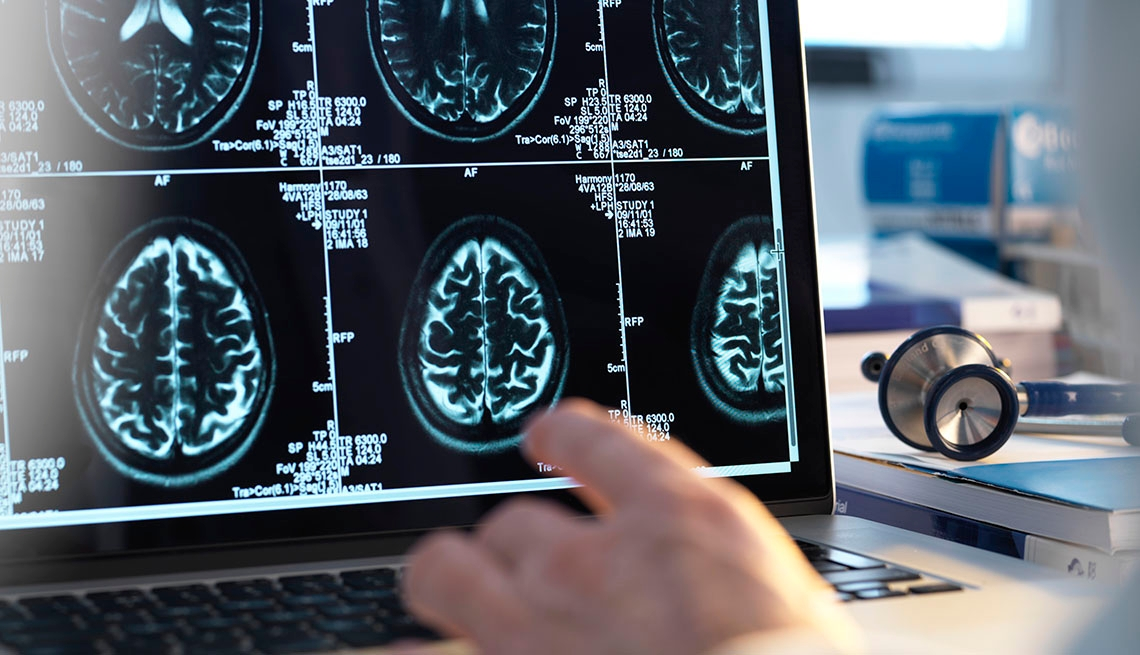 TMS Brain Therapy May Reverse Age-Related Memory Loss