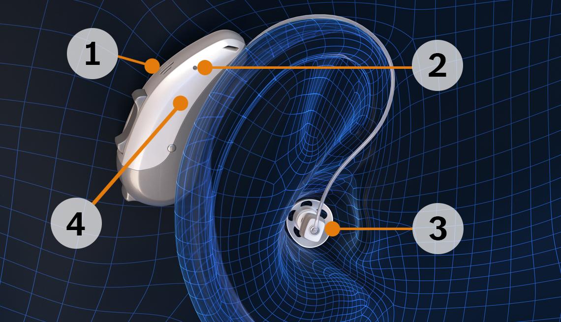 Gráfico de un audífono en el oído
