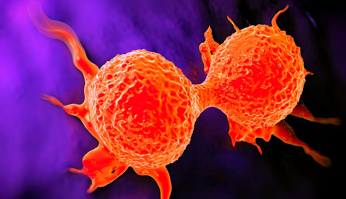 A dividing breast cancer cell showing its uneven surface and cytoplasmic projections