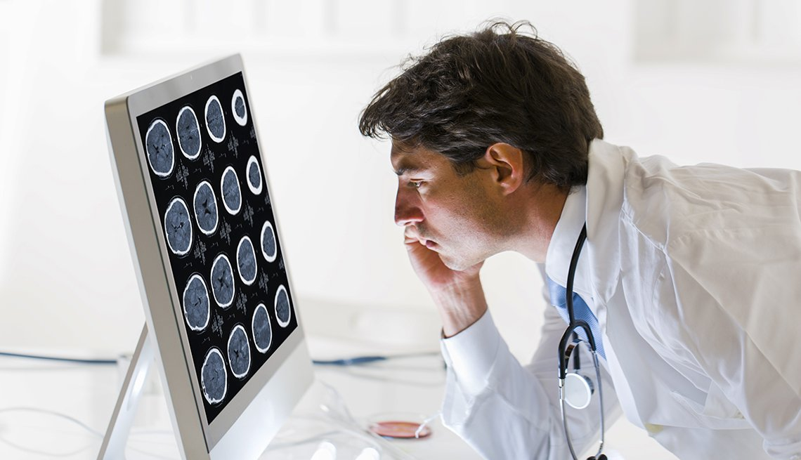 Doctor looking at scan of human brain