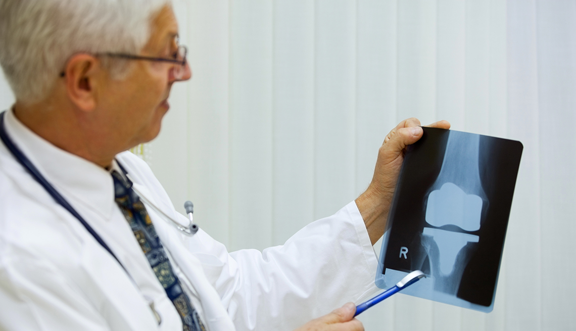 A doctor is examining a x-ray image of an artificial knee
