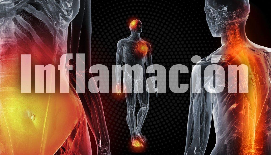 Ilustración sobre la inflamación en el cuerpo