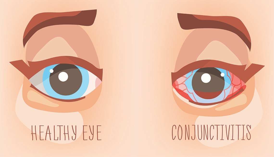 An illustration that shows a healthy eye on the left and an eye suffering from pink eye on the right