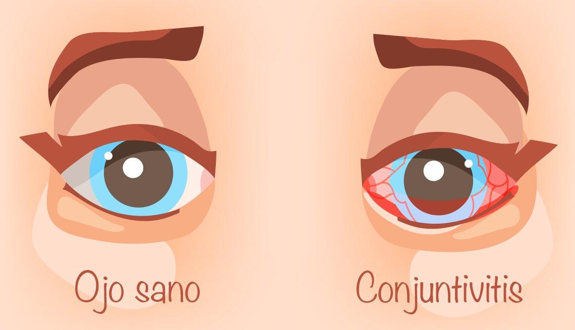 Ilustración de un ojo sano y un ojo con conjuntivitis
