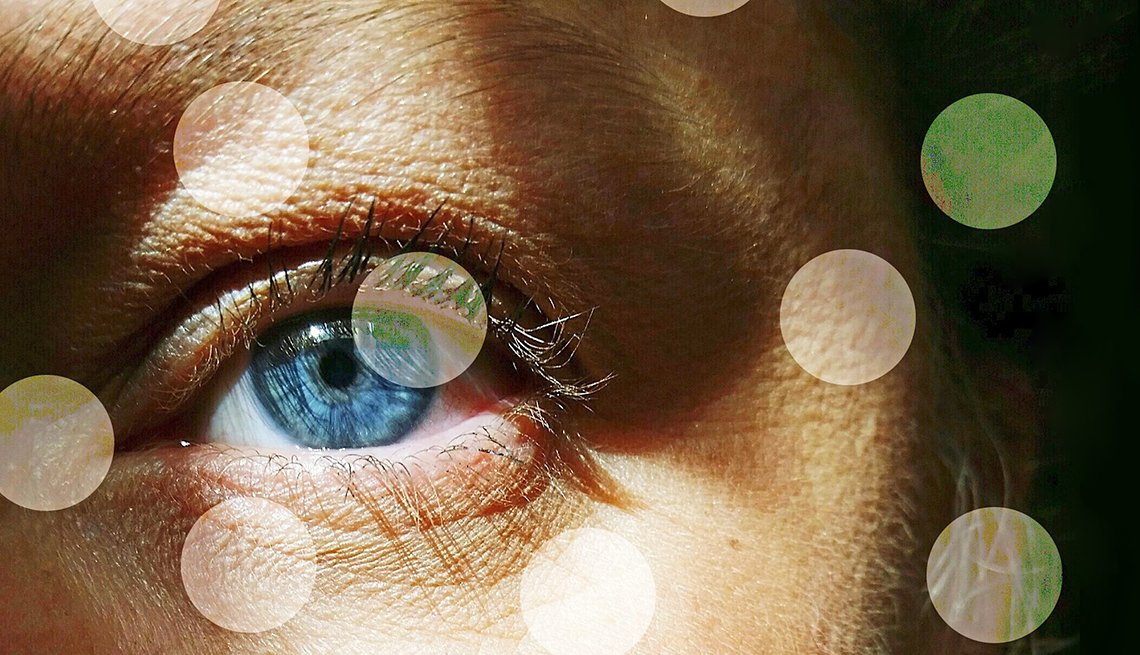 closeup of a persons blue eye with floating transparent spots clouding our vision