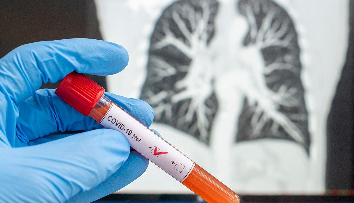 Mano con guantes sostiene un tubo de ensayo y al fodon una radiografía de unos pulmones