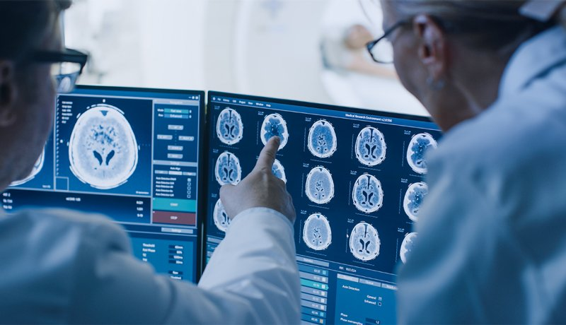 Doctors confer as they point to a brain scan on a computer screen