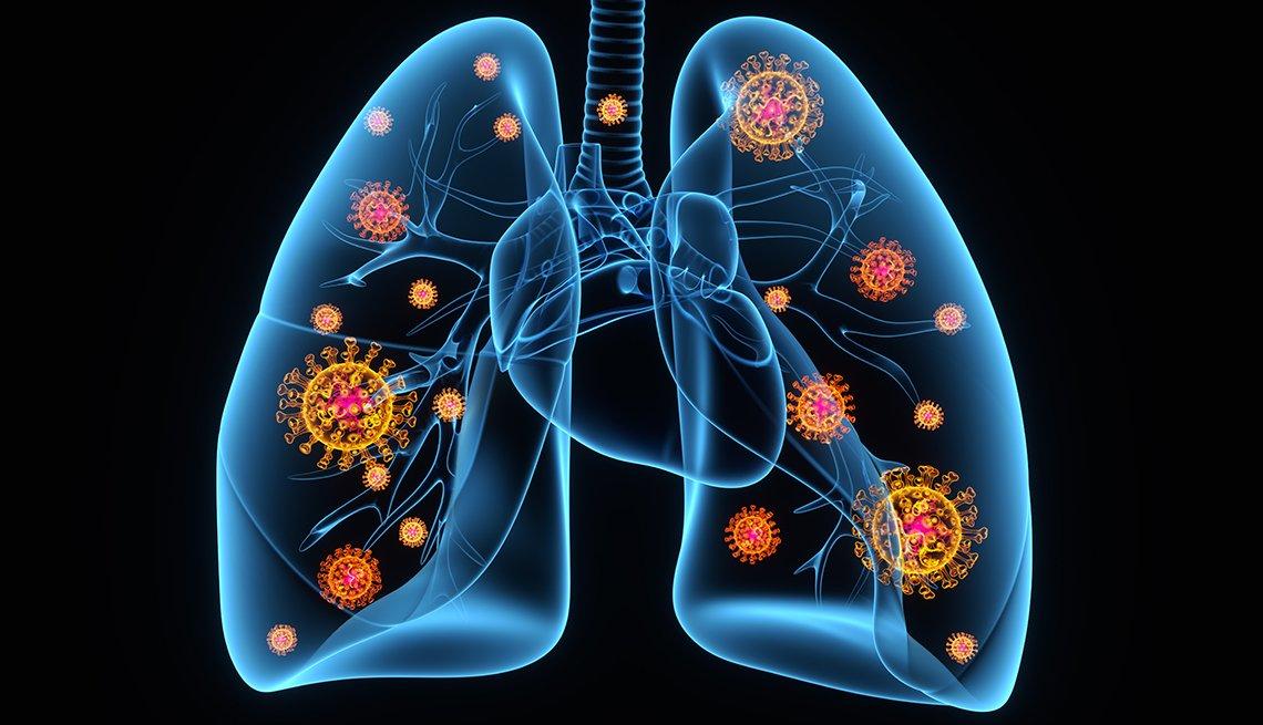 Ilustración de unos pulmones infectados con el coronavirus