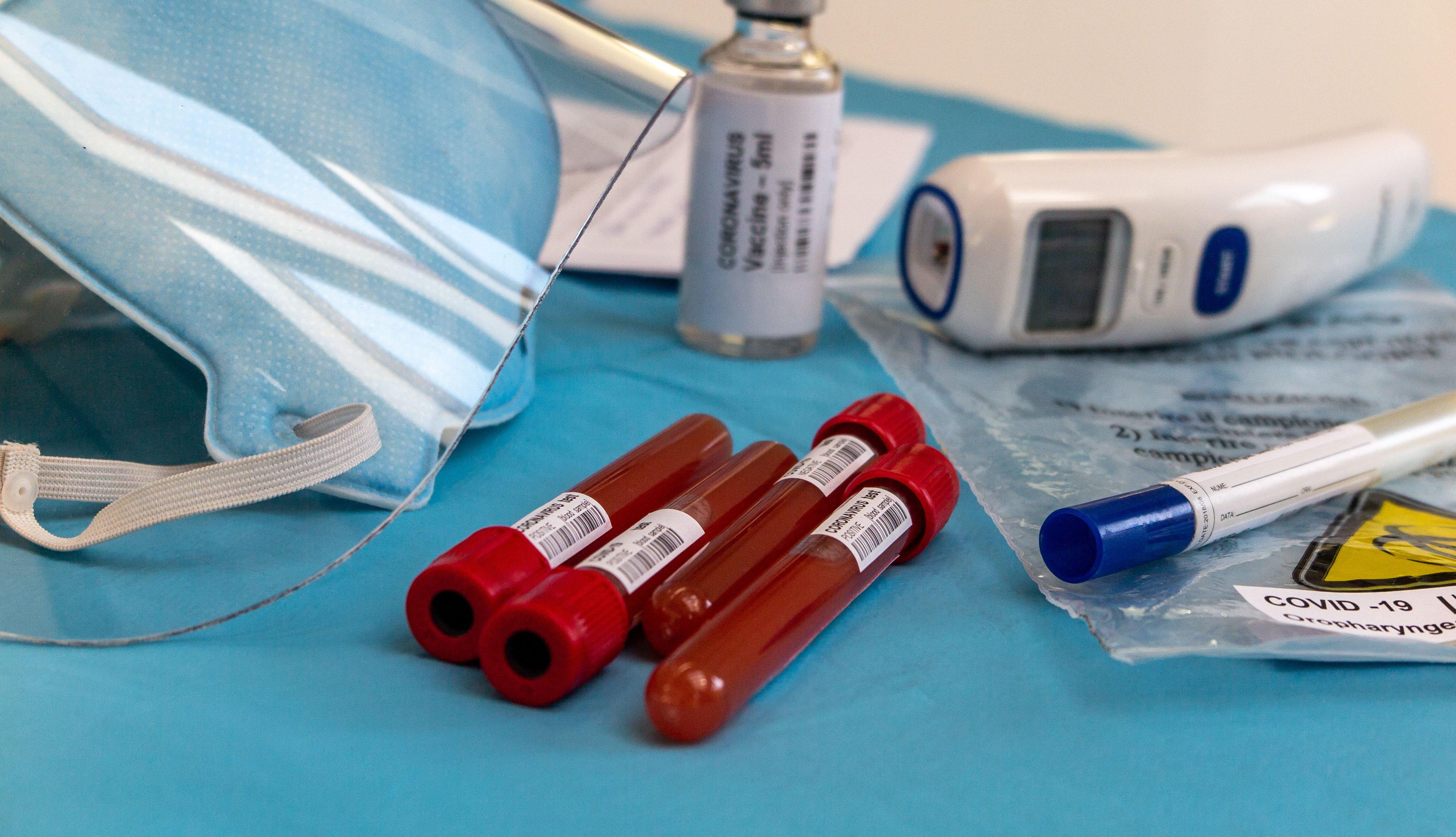 Tubos de ensayo con muestras de sangre sobre una mesa y otros artículos de laboratorio