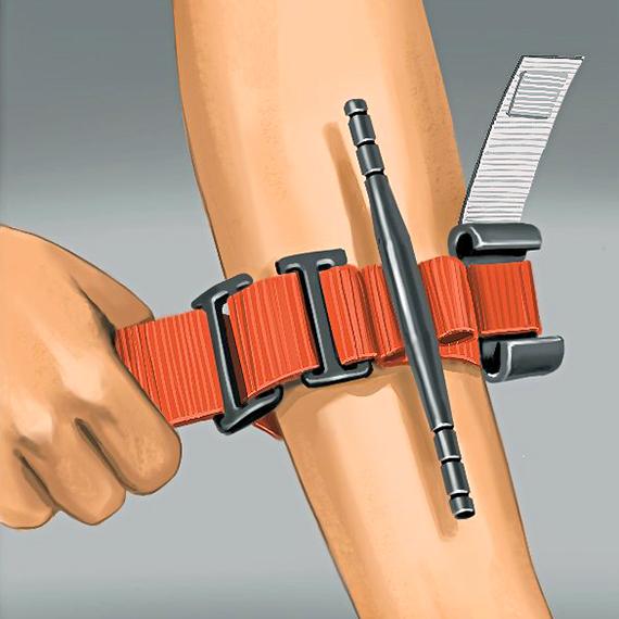 Ilustración de un torniquete en un brazo