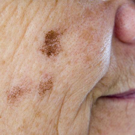 example of lentigo senilis or liver spot on face