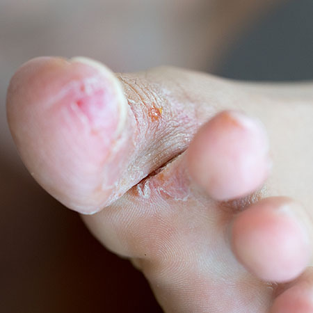 tinea pedias (athlete's foot) example on a person's foot