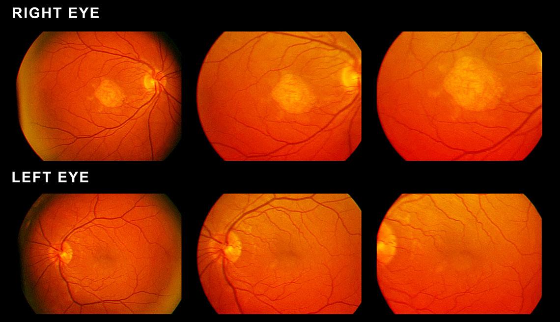 item 4 of Gallery image - Scan of eyes showing macular degeneration