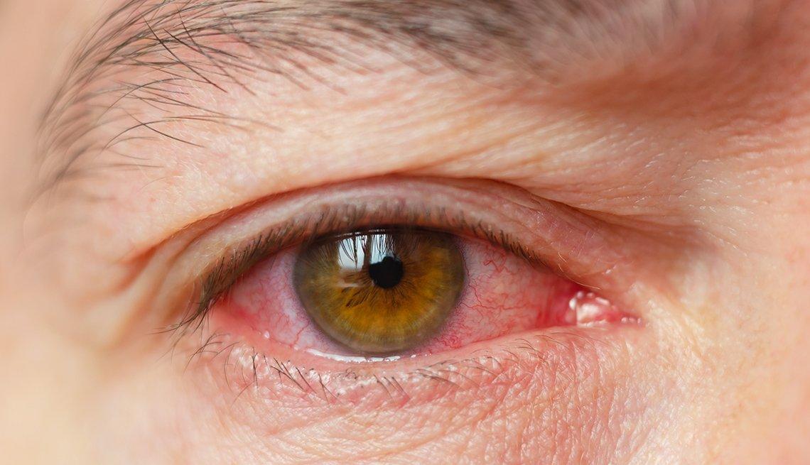 Toma cercana de un ojo infectado con conjuntivitis