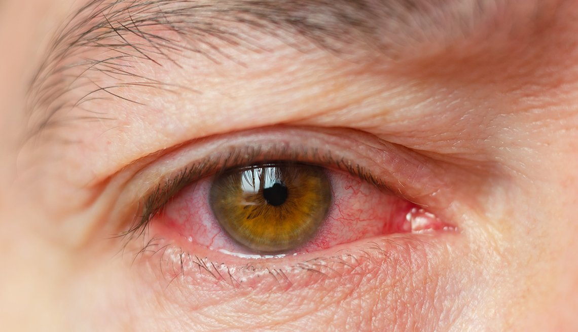 A closeup of someone infected with pink eye