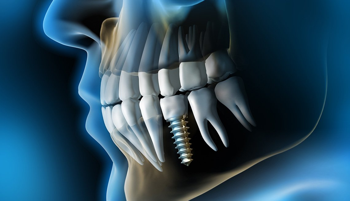 Illustration of a dental implant in the gum
