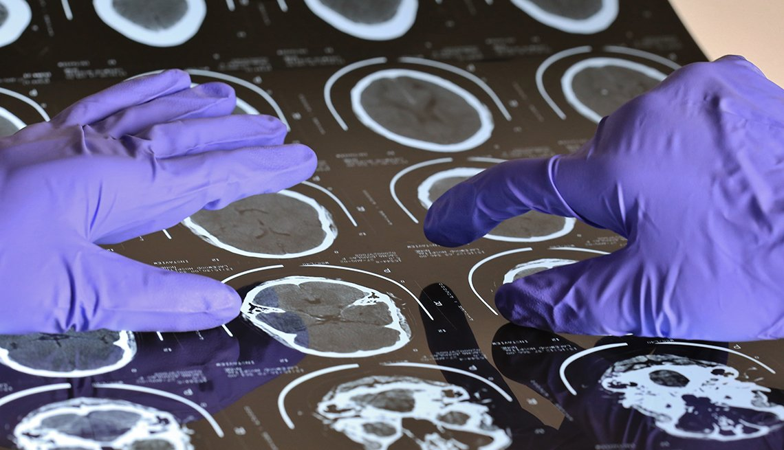gloved researcher points at brain scans