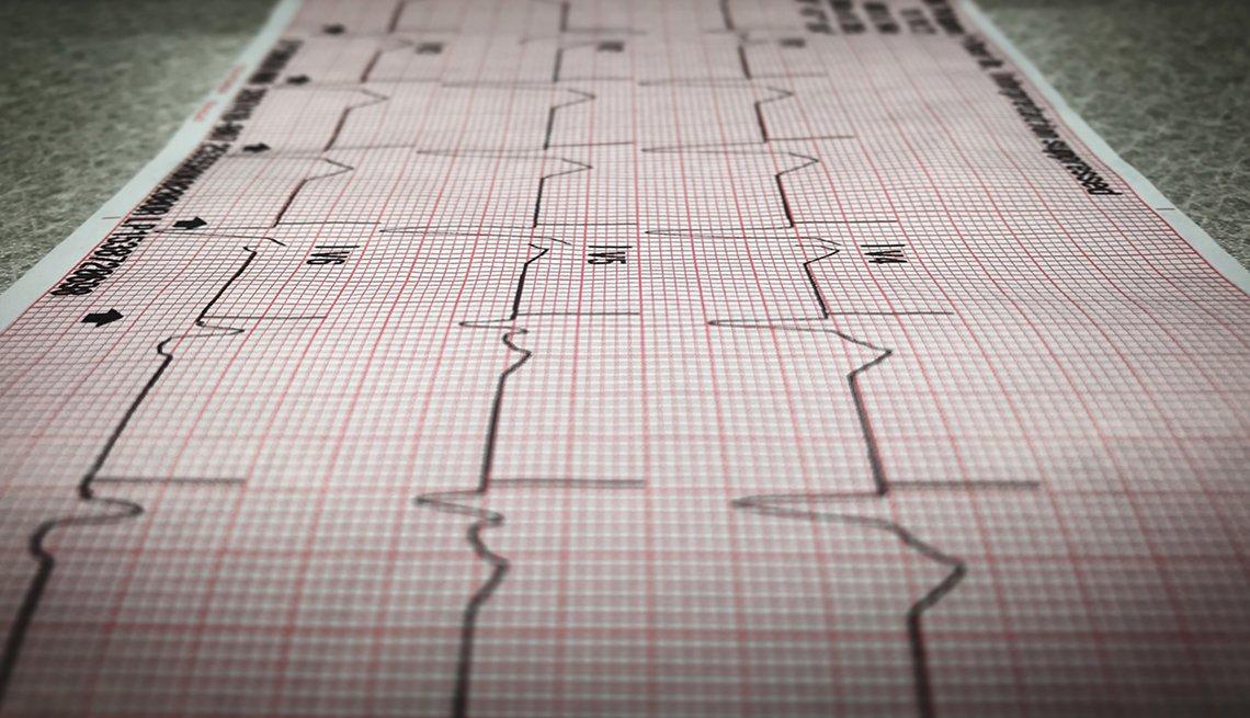Cardiology printout