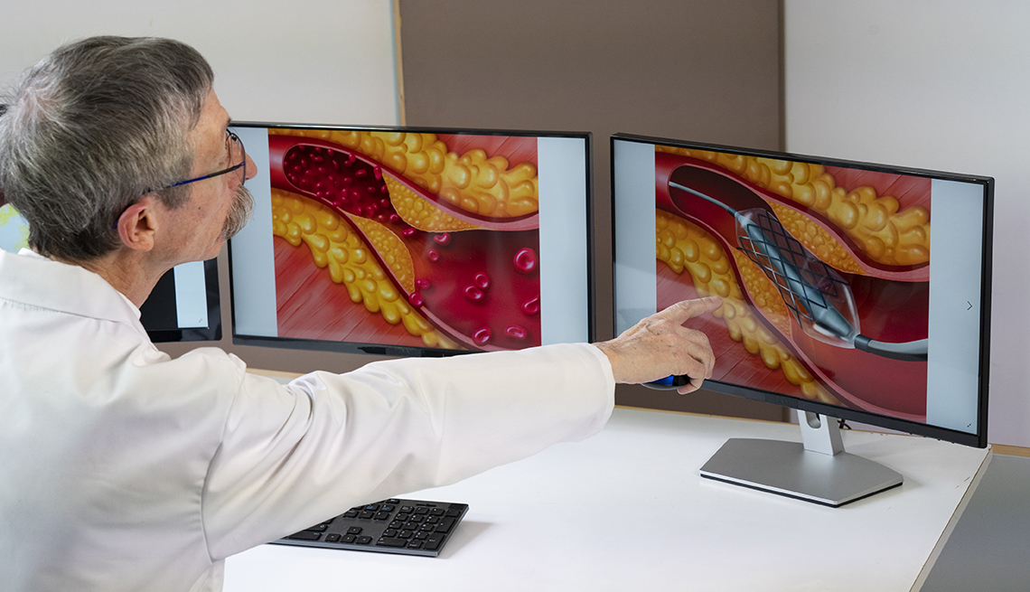 doctor showing atheroma plaque and stent placement images on computer screens